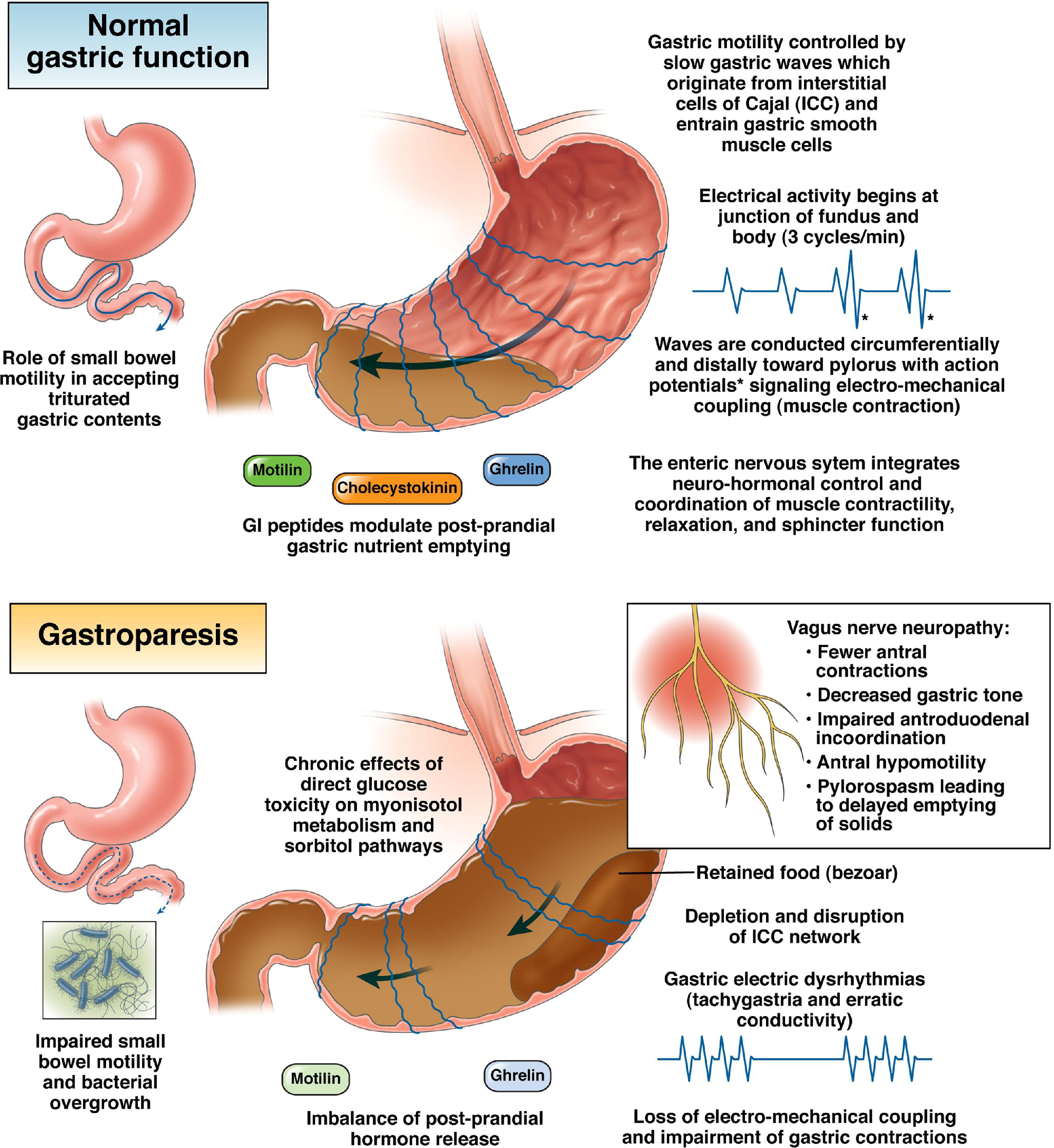 Natural Remedies For Diabetic Gastroparesis